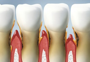 Enfermedad periodontal.