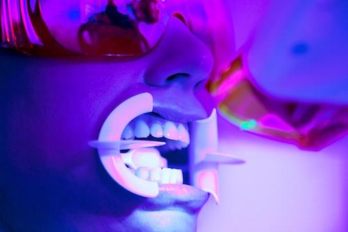 Kết quả hình ảnh cho Tooth whitening